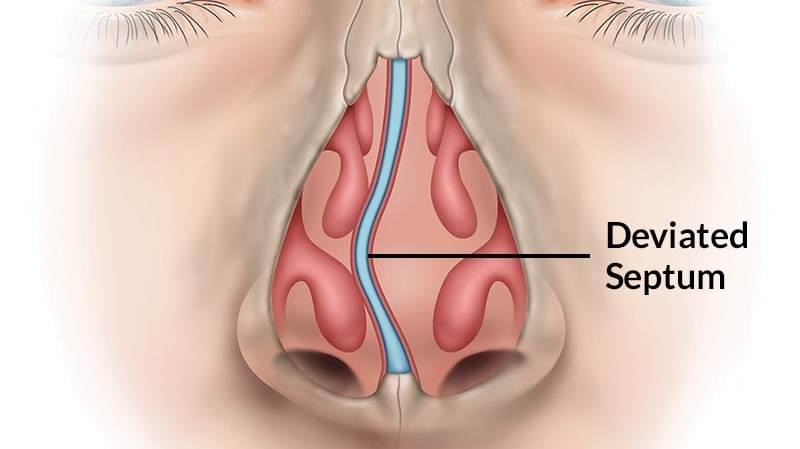 A figure of a deviated septum of the nose.